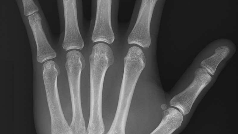 X-ray of normal hand