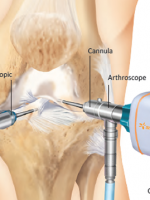 Knee arthroscope