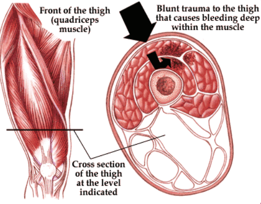 Muscle Contusion - corked muscle