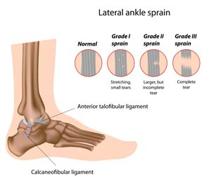 Images of lateral ankle sprain