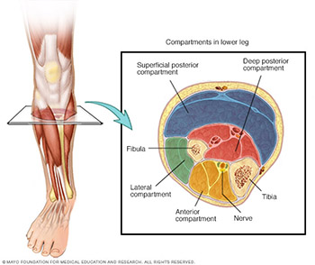 Image of compartment syndrome