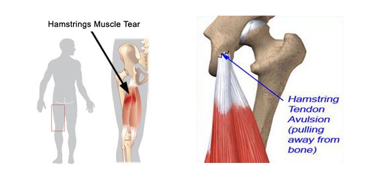 Hamstring muscle tear